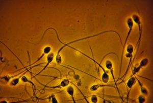Sperm Count in Western Men Has Dropped Over 50 Percent Since 1973, Paper Finds